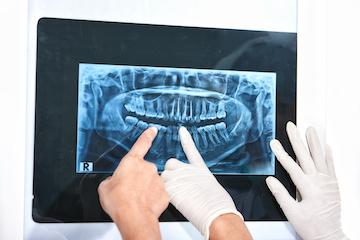 Dental X-Rays | Mill Creek WA