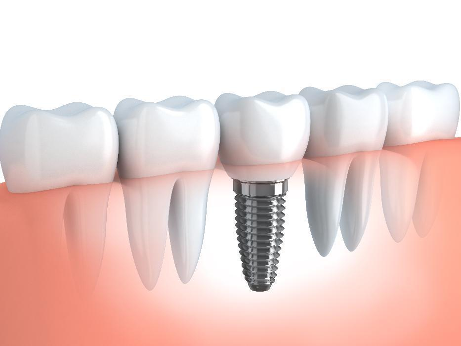 Dental Implants | Mill Creek Dental Health Care | Mill Creek, WA