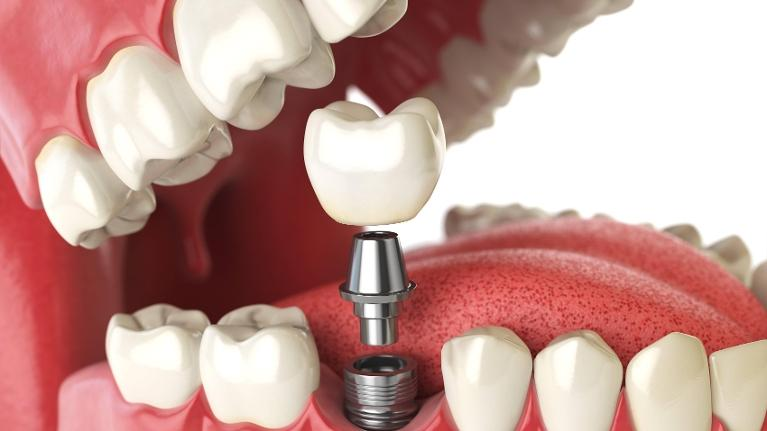 Diagram of the dental implant process in Mill Creek WA