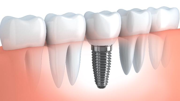 Dental Implants | Mill Creek WA